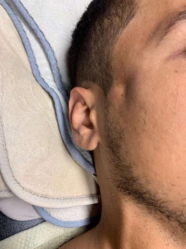 Lĩnh trọn cú thúc cùi chỏ của Ibrahimovic, cầu thủ nhập viện vì nứt xương sọ