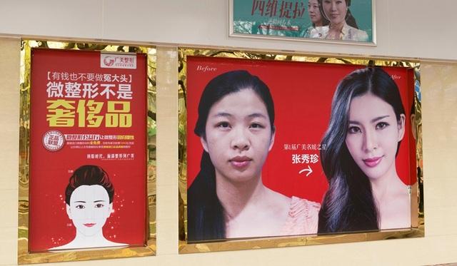 Giới trẻ Trung Quốc đua nhau đi thẩm mỹ trước khi vào đại học - 2