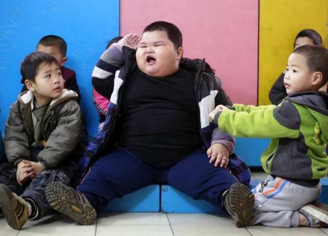 Báo động tình trạng thiếu đói, suy dinh dưỡng và béo phì ở khu vực châu Á - 1