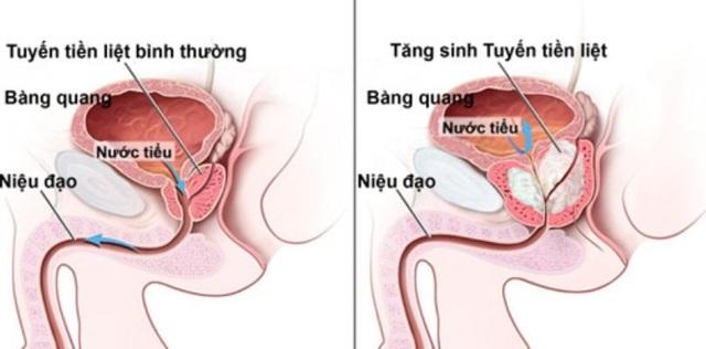 Phương pháp giúp đẩy lùi trị tiểu đêm, tiểu nhiều lần ở nam giới có u xơ tiền liệt - 2