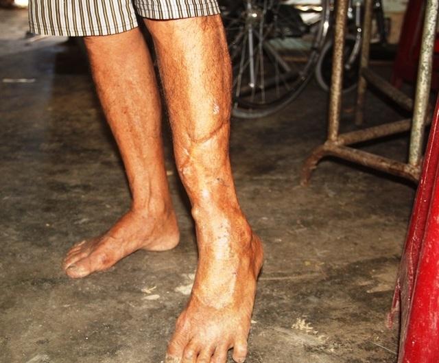 Xót thương vợ chồng già 40 năm nuôi đứa con Chín lết nhiễm chất độc da cam - 7