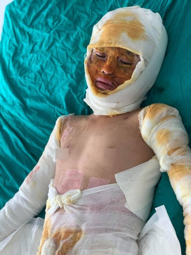 Bạn đọc Dân trí giúp đỡ bé gái sống sót duy nhất trong vụ cả nhà 4 người bị thiêu sống gần 180 triệu đồng - 2