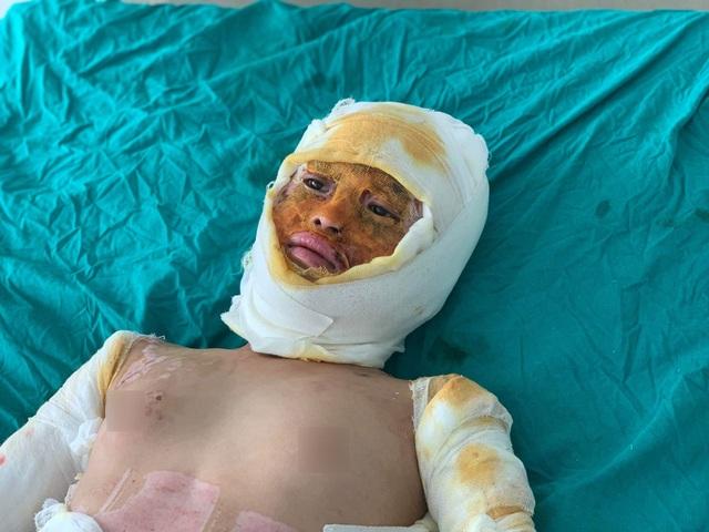 Bạn đọc Dân trí giúp đỡ bé gái sống sót duy nhất trong vụ cả nhà 4 người bị thiêu sống gần 180 triệu đồng - 1