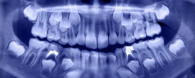 Các nha sĩ lấy ra hơn 500 chiếc răng từ miệng của một cậu bé… 7 tuổi - 1