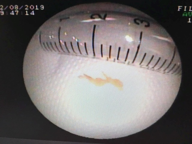 Cứu bệnh nhân nhi người Lào bị xương cá trê găm trong phổi hơn 1 tháng - 4