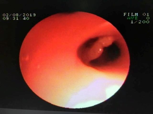 Cứu bệnh nhân nhi người Lào bị xương cá trê găm trong phổi hơn 1 tháng - 2