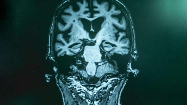 Xét nghiệm máu phát hiện bệnh Alzheimer ở giai đoạn đầu với độ chính xác 94% - 1