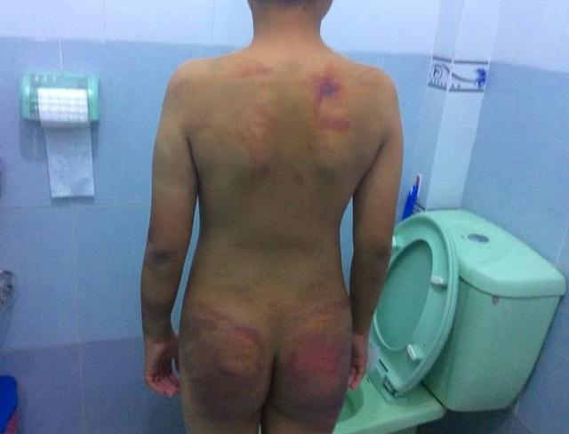 Bé trai 11 tuổi bị 1 người tu hành đánh dã man - 4