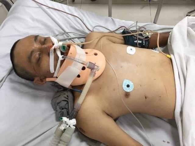 Quảng Bình: Người đàn ông tai nạn nguy kịch, bệnh viện thông báo tìm người thân - 1