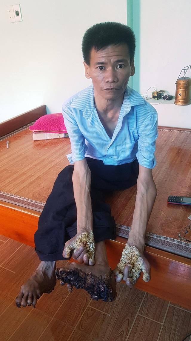 """Gặp người đầu tiên mắc căn bệnh kỳ lạ """"người cây"""" ở Việt Nam - 2"""