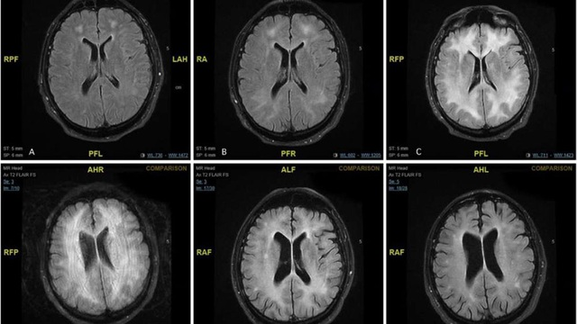 Cocaine có tác động khủng khiếp trên não như thế nào? - 1