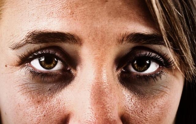 Quầng thâm dưới mắt: nguyên nhân và cách khắc phục - 1