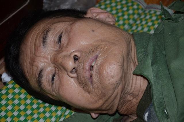 Người cựu binh ung thư khốn khổ nuôi con trai tâm thần và mẹ già 90 tuổi - 3