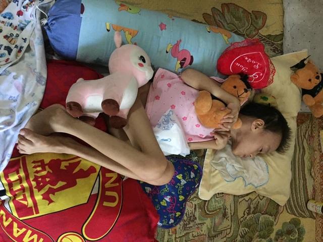 Xót thương bé gái đang khoẻ mạnh bỗng đổ bệnh lạ người chỉ còn da bọc xương - 7