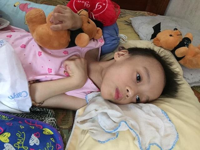 Xót thương bé gái đang khoẻ mạnh bỗng đổ bệnh lạ người chỉ còn da bọc xương - 15