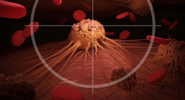 Cảnh giác với 7 triệu chứng của ung thư - 1