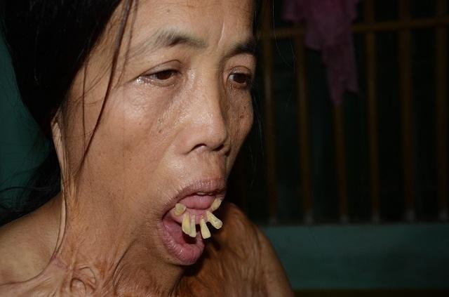 """Viện Bỏng Quốc gia chữa miễn phí cho người đàn bà nửa thế kỉ mang hàm răng """"kì dị"""" - 1"""