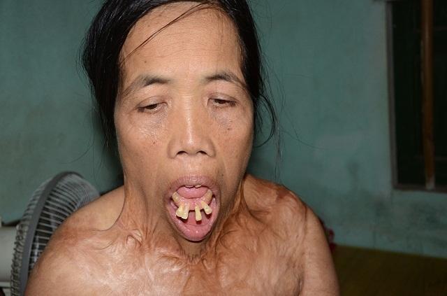 """Viện Bỏng Quốc gia chữa miễn phí cho người đàn bà nửa thế kỉ mang hàm răng """"kì dị"""" - 6"""