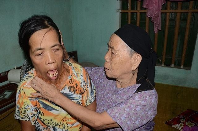 """Viện Bỏng Quốc gia chữa miễn phí cho người đàn bà nửa thế kỉ mang hàm răng """"kì dị"""" - 5"""