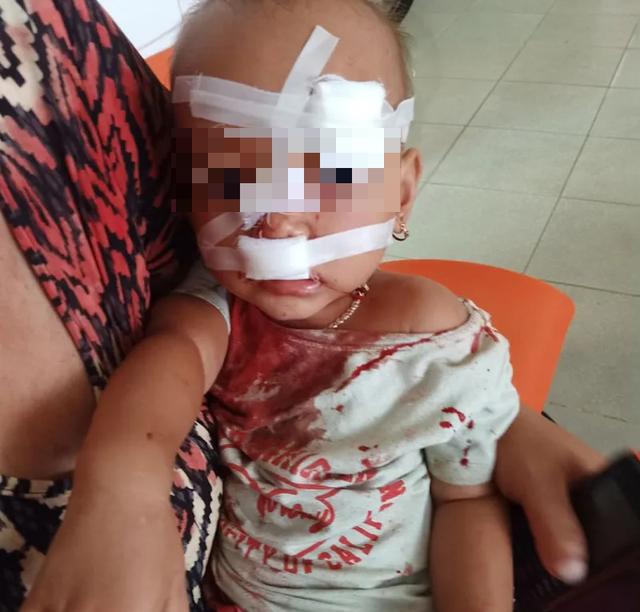 Vợ chồng cãi vã khiến con hai tuổi phải nhập viện cấp cứu - 1