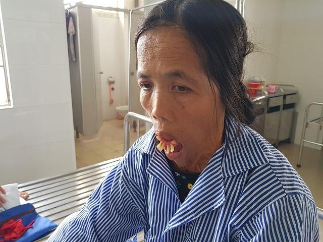 """Sau nửa thế kỉ, người đàn bà có hàm răng """"kỳ dị"""" rụt rè khi lần đầu nhập viện - 5"""