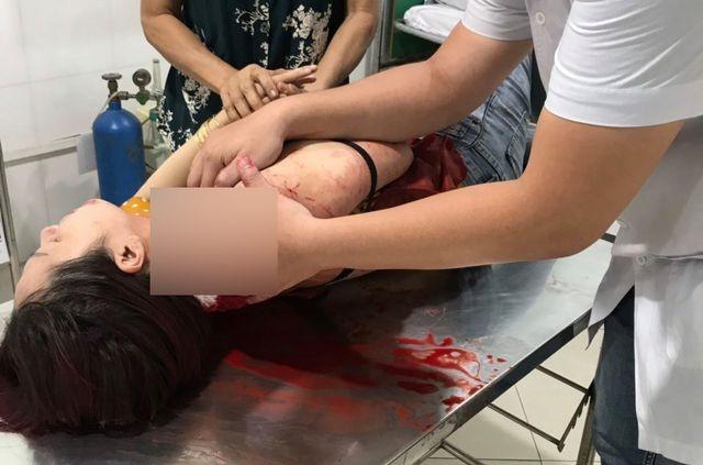Vụ một phụ nữ bị đâm khi vừa ăn sáng xong: Nghi can ra đầu thú - 2
