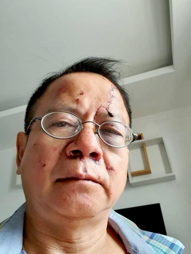Một Việt kiều bị đánh hội đồng trong quán karaoke ở Sài Gòn - 1