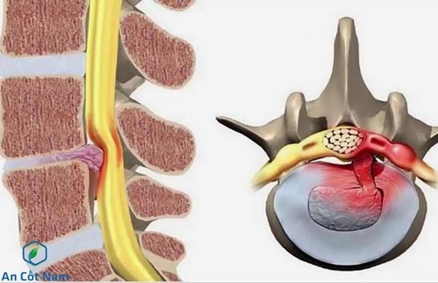 Thoát vị đĩa đệm có nguy hiểm không? – Giải pháp điều trị mang tên An Cốt Nam - 1