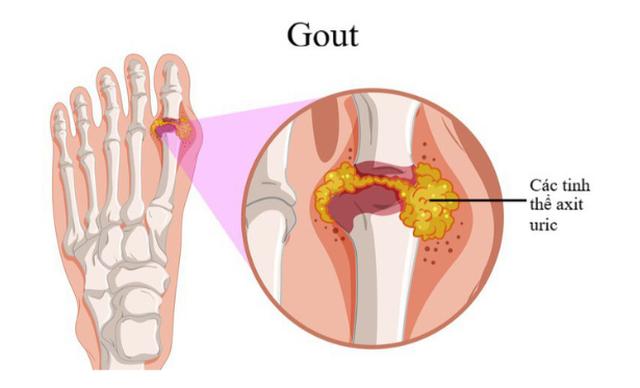 Suy giảm sinh lý vì bị gout, phải làm sao? - 1