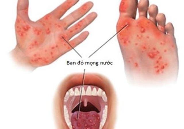 Một số bệnh ngoài da do virus thường gặp và cách điều trị - 3