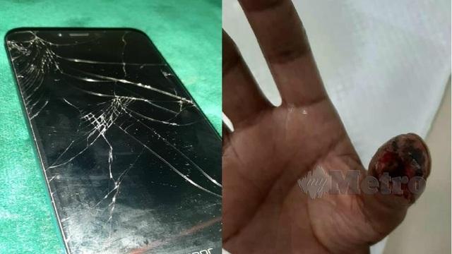 Suýt mất ngón tay vì sử dụng smartphone với tấm dán cường lực màn hình bị vỡ - 1
