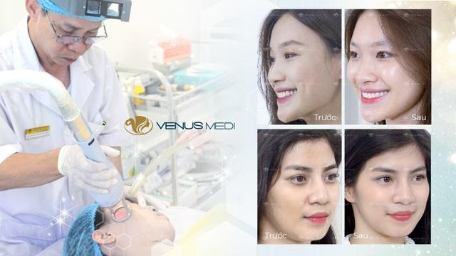 Trẻ hóa da đa tầng Multi Layer, bước tiến mới của công nghệ làm đẹp - 5