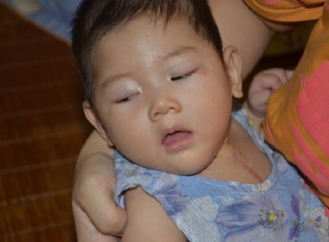 Tiếng khóc xé lòng của bé gái 9 tháng tuổi mắc tim bẩm sinh phức tạp - 1