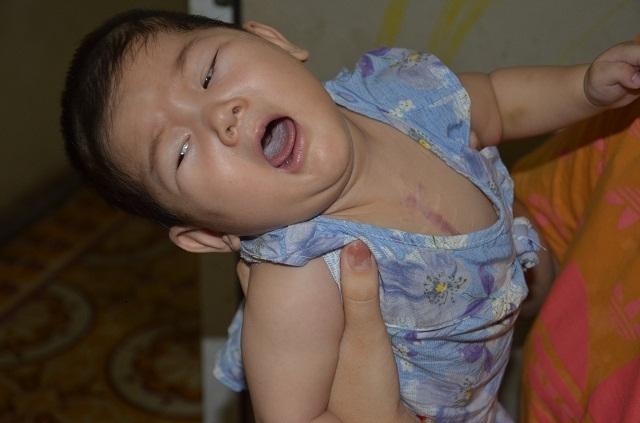 Tiếng khóc xé lòng của bé gái 9 tháng tuổi mắc tim bẩm sinh phức tạp - 3
