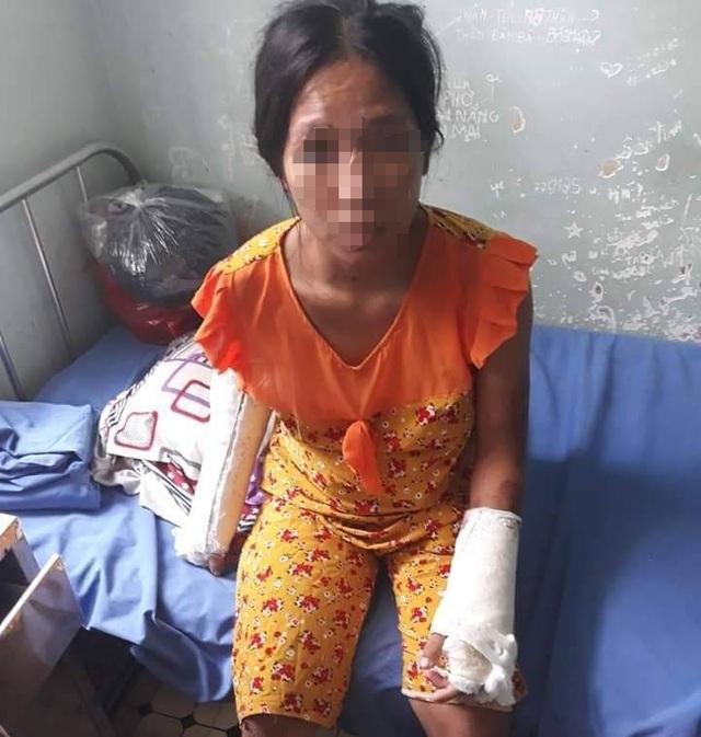 Phẫn nộ người chồng đánh đập tàn bạo vợ đang mang thai 7 tháng - 1