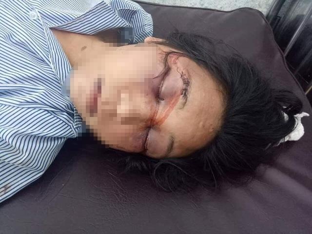Phẫn nộ người chồng đánh đập tàn bạo vợ đang mang thai 7 tháng - 4