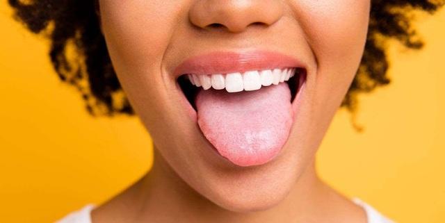 Sưng lưỡi là dấu hiệu của bệnh gì? - 1
