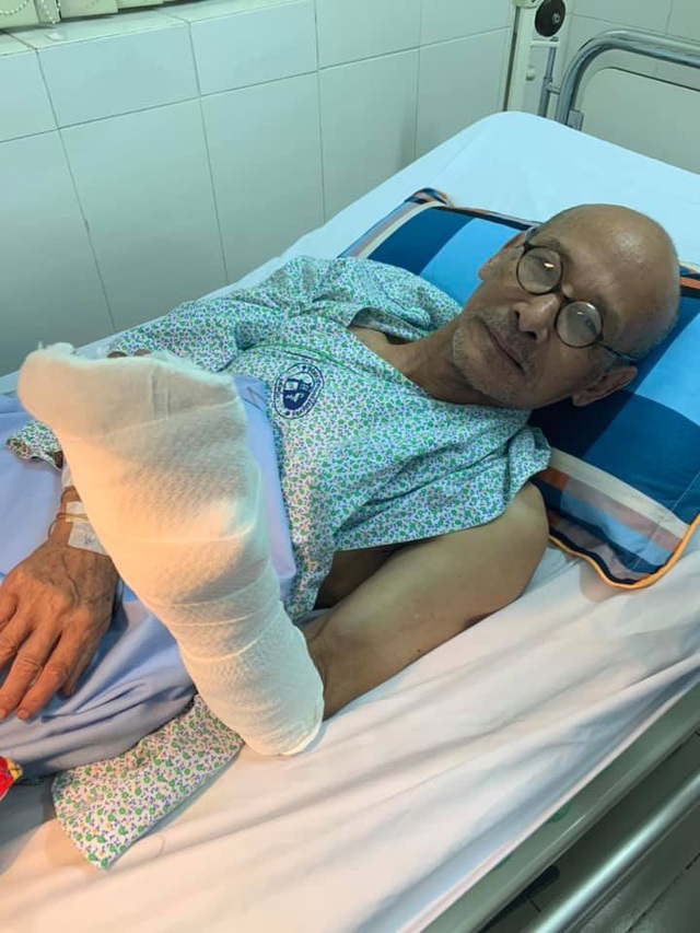"""Nhà văn Nguyễn Văn Thọ bị cưa điện """"xén"""" đứt lìa nửa bàn tay trái"""