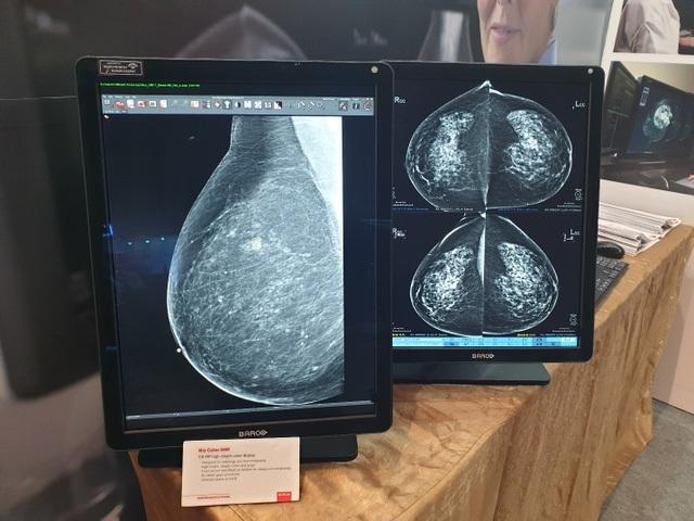 Màn hìnhBarco giúp nâng cao chất lượng chẩn đoán hình ảnh y khoa - 1