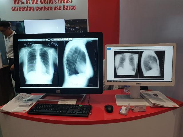 Màn hìnhBarco giúp nâng cao chất lượng chẩn đoán hình ảnh y khoa - 2
