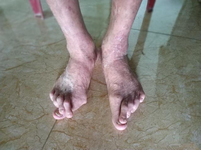 Vết gợn gia đình da cam sống quay quắt với cả tá bệnh hiểm nghèo - 4