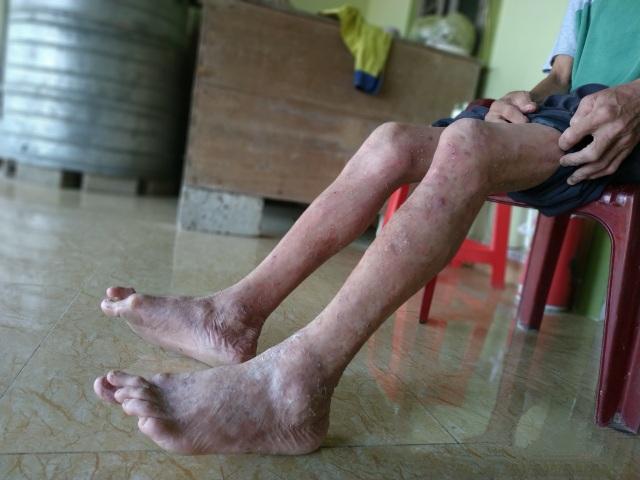 Vết gợn gia đình da cam sống quay quắt với cả tá bệnh hiểm nghèo - 5