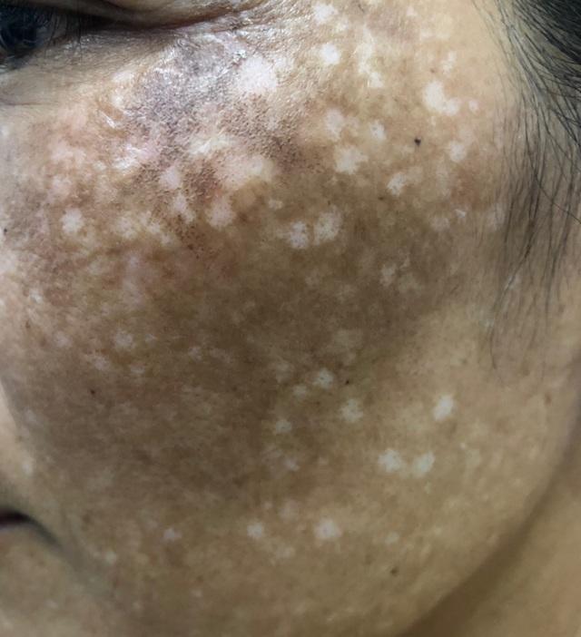 Lời khuyên của bác sĩ chuyên khoa da liễu để chữa nám da hiệu quả - 1