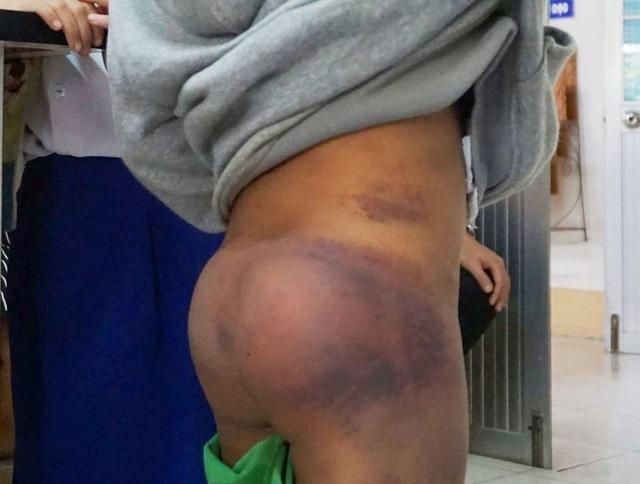 Vụ 4 học sinh bị người thân bạo hành: Chủ tịch tỉnh Cà Mau chỉ đạo xử lý - 1