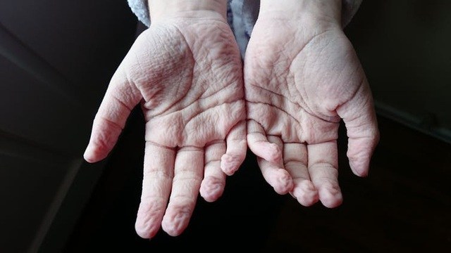 Khoa học cùng với bé: Vì sao chân, tay bị nhăn khi ngâm lâu trong nước? - 1