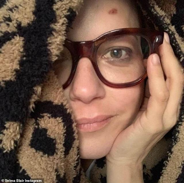 Selma Blair trọc đầu vì điều trị bệnh đa xơ cứng - 5