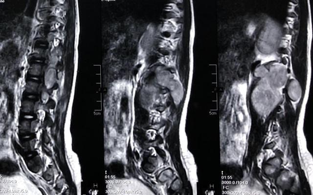 Bé gái liệt 2 chân đứng bật dậy đi lại sau mổ khối u tuỷ sống - 1