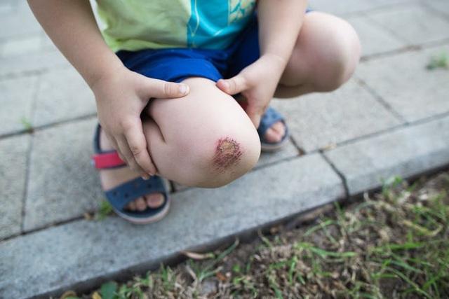 Khoa học cùng với bé: Vết thương lành lại như thế nào? - 1