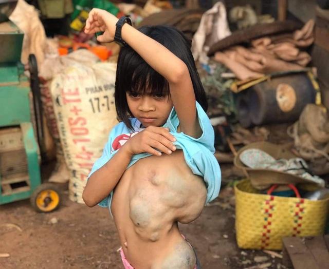 Giải cứu bé gái mang khối bướu chiếm 1/3 cơ thể - 1