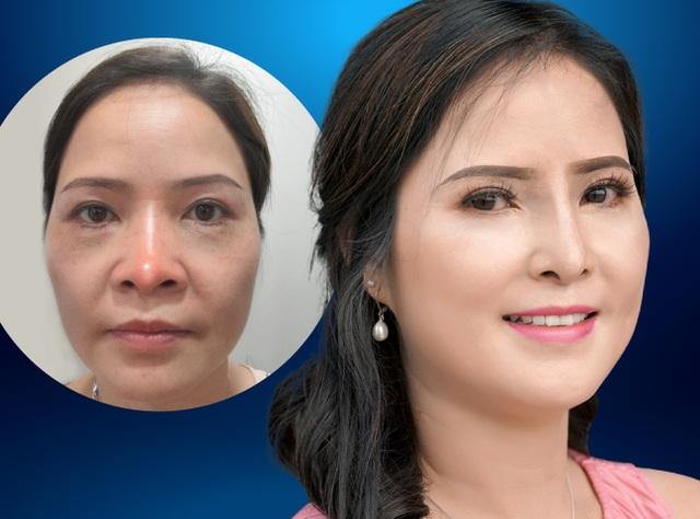 Cứu chữa thành công chiếc mũi biến dạng cho nữ Việt kiều - 1